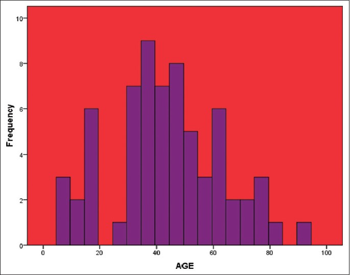Figure 1: Histogram showing the age distribution of the subjects