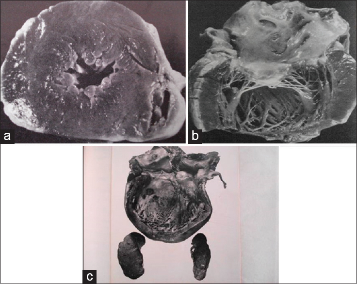 Figure 4: (a) Concentric hypertrophy of the left ventricle in a patient who died of hypertension. Note the reduced ventricular cavity. (b) Concentric hypertrophy of the left ventricle in a patient who died of hypertension. (c) Another patient who died of hypertensive heart failure. Note that the heart has started to dilate