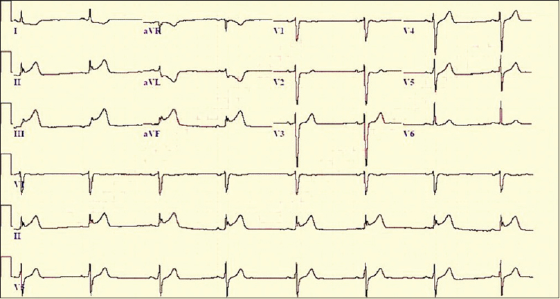 Figure 12: Electrocardiography of patient showing inferior wall myocardial infarction
