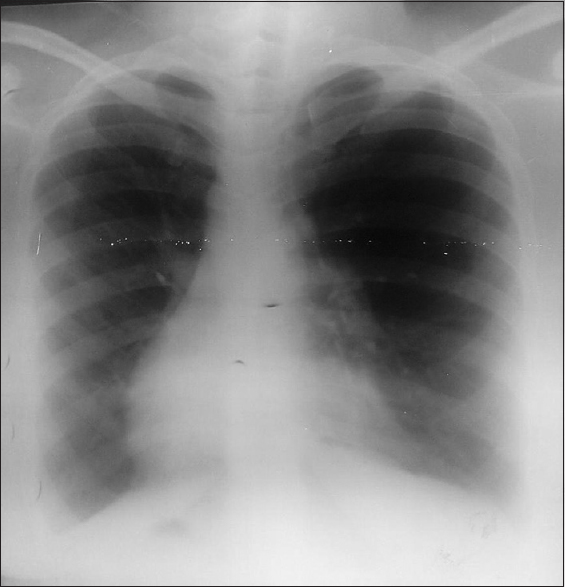 Figure 1: Chest radiograph (posterioanterior view) of a 32-year-old Nigerian woman showing the heart in the right hemithorax with the base to apex pointing toward the right, the aortic arch was located on the right, the lung fields are clear, and the gastric bubbles are on the right